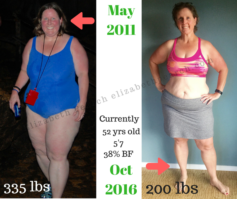 Here's what more than 100 pounds gone looks like: